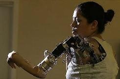 Première femme bionique